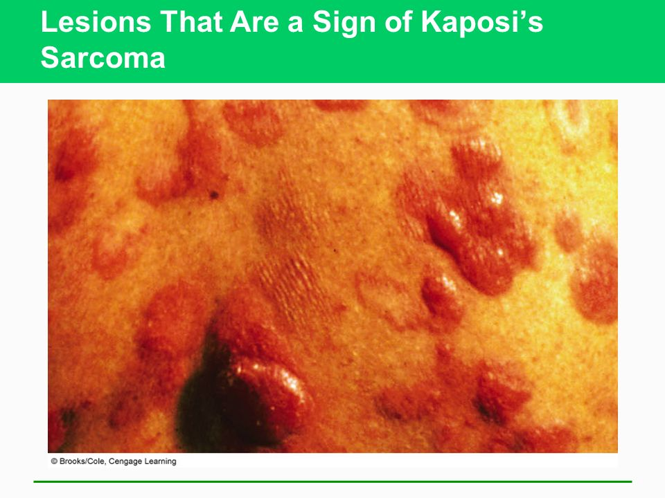 Lesions That Are a Sign of Kaposi's Sarcoma