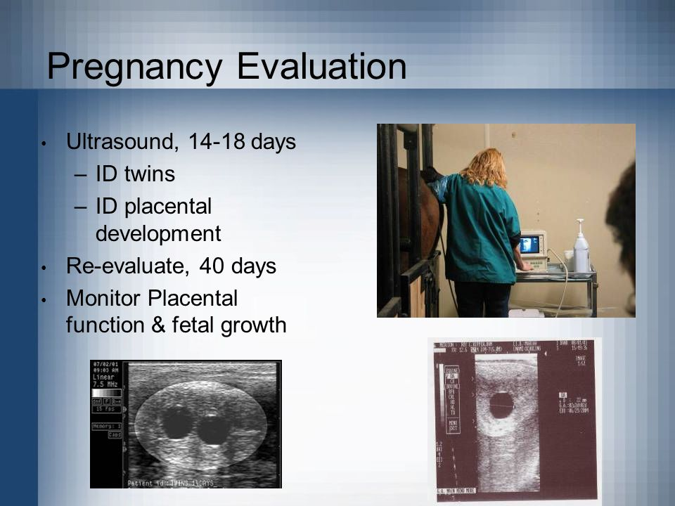 Pregnancy Evaluation Ultrasound, 14-18 days ID twins