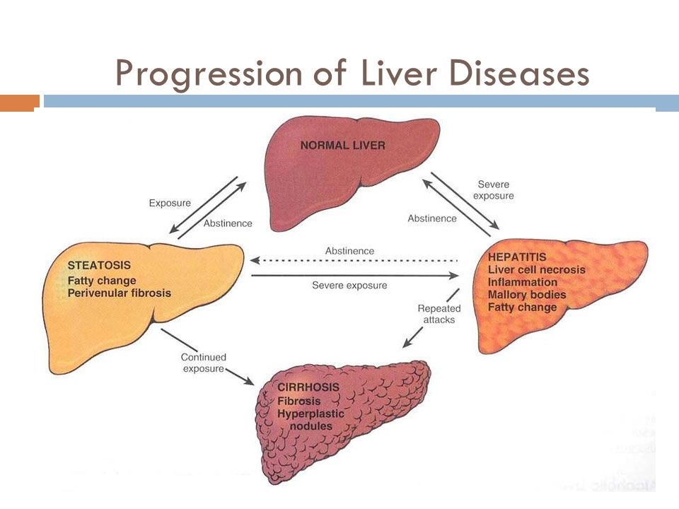 Progression of Liver Diseases