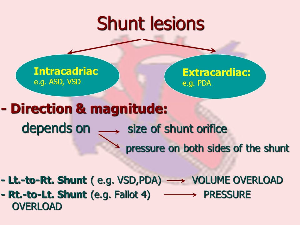 Shunt lesions - Direction & magnitude: