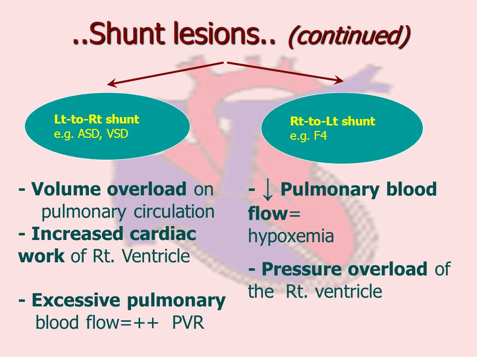 ..Shunt lesions.. (continued)