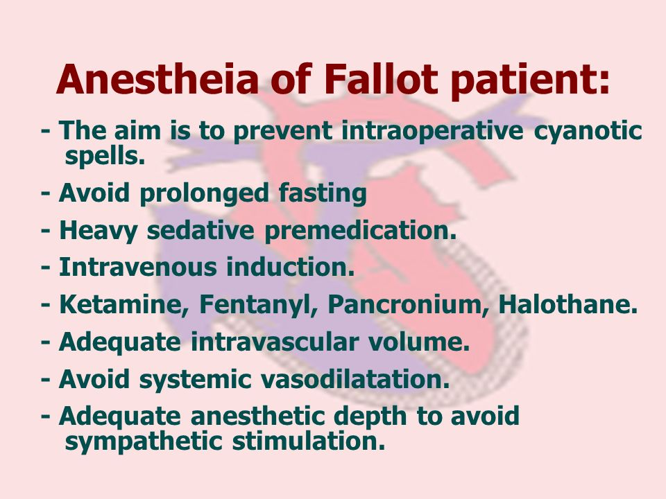 Anestheia of Fallot patient: