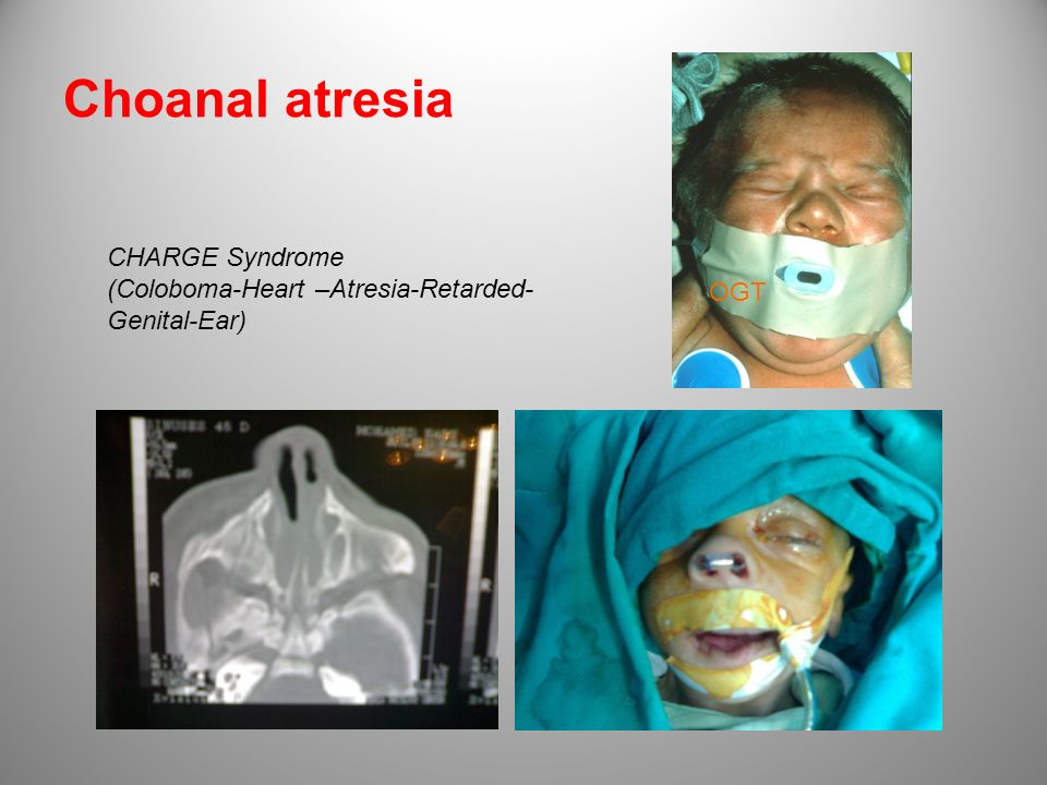 Choanal atresia CHARGE Syndrome (Coloboma-Heart –Atresia-Retarded-Genital-Ear) OGT