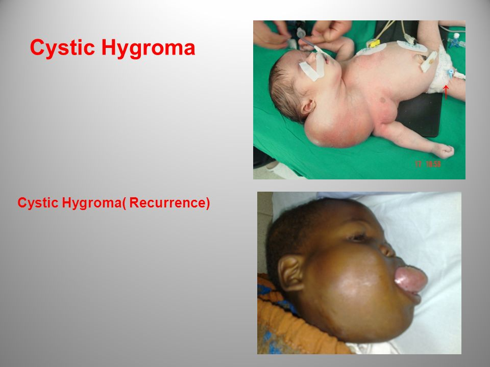 Cystic Hygroma ↑ Cystic Hygroma( Recurrence)