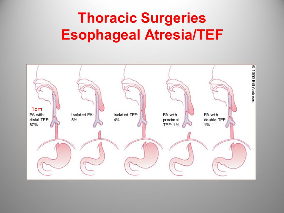Thoracic Surgeries Esophageal Atresia/TEF