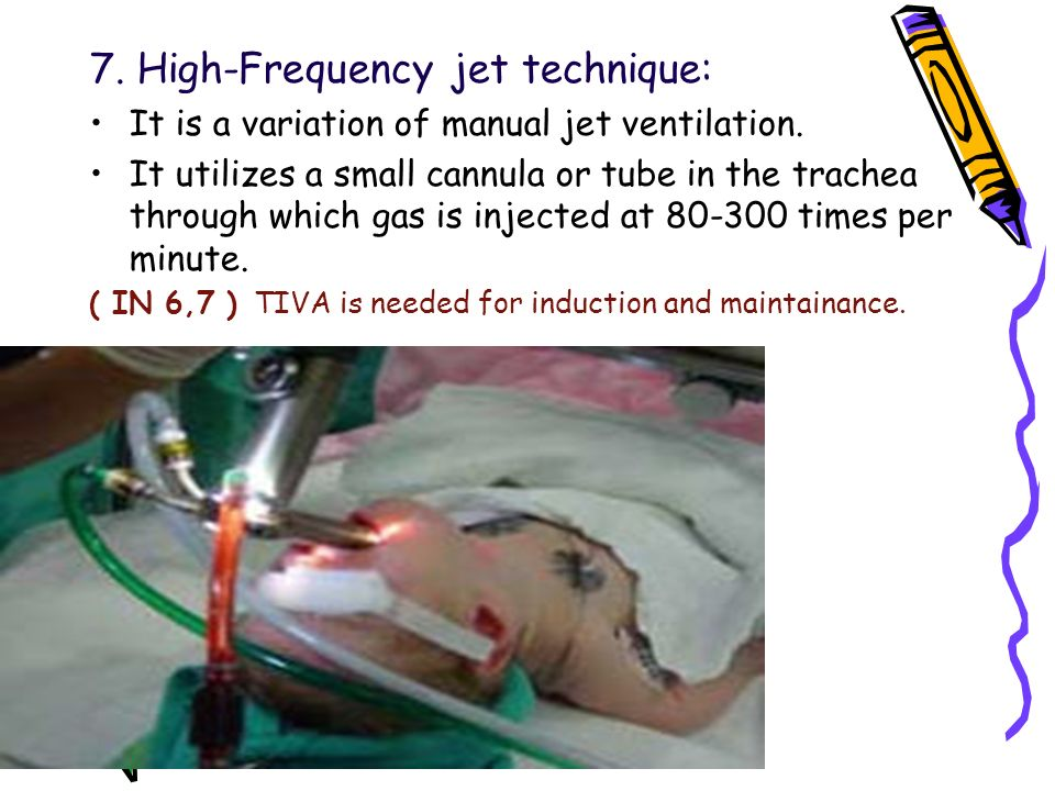 7. High-Frequency jet technique: