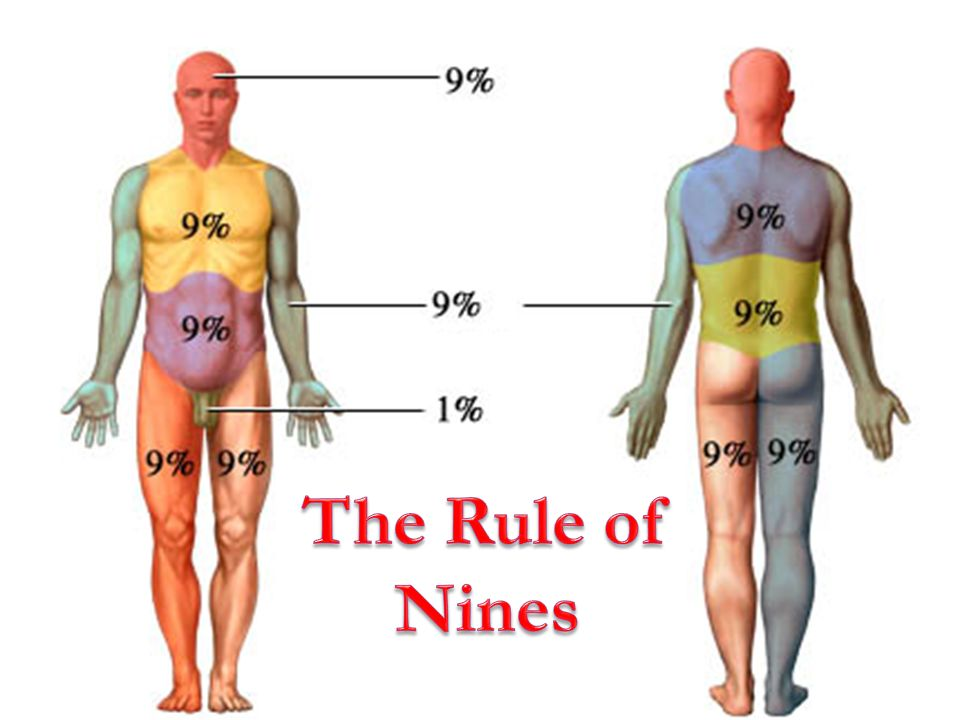The Rule of Nines