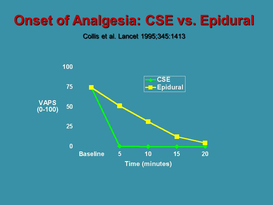 Onset of Analgesia: CSE vs. Epidural Collis et al. Lancet 1995;345:1413