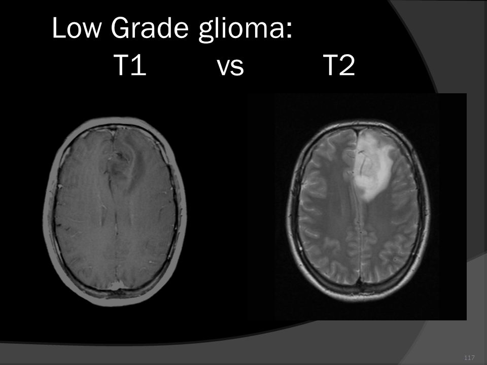 Low Grade glioma: T1 vs T2