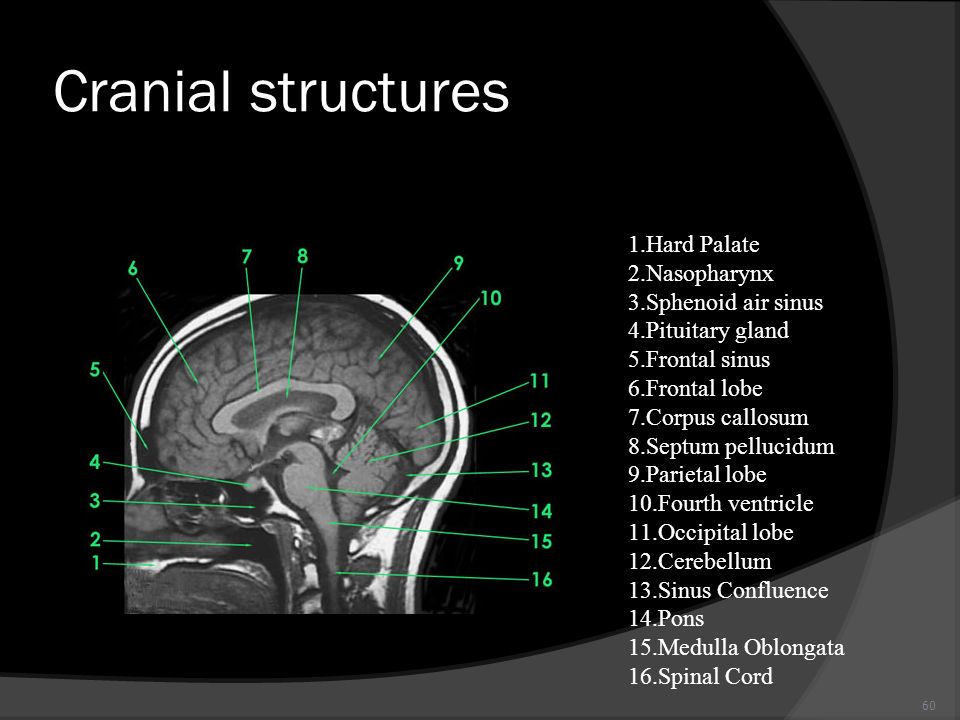 Cranial structures Hard Palate Nasopharynx Sphenoid air sinus