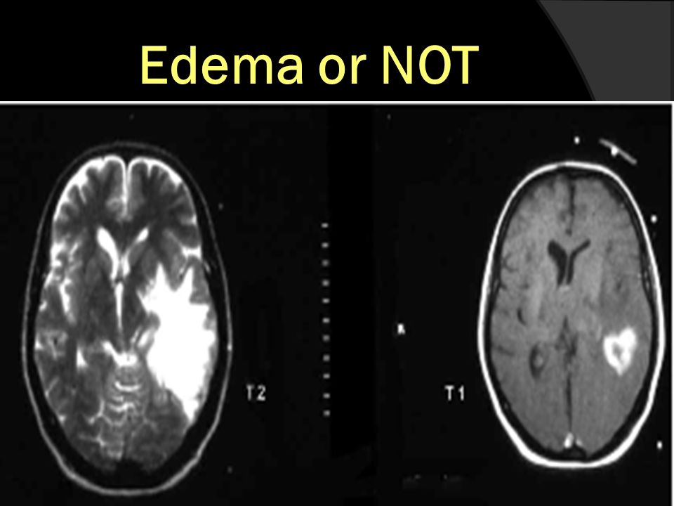 Edema or NOT