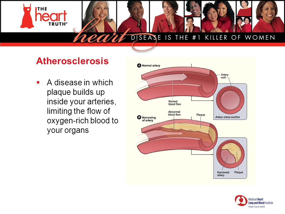 Atherosclerosis A disease in which plaque builds up inside your arteries, limiting the flow of oxygen-rich blood to your organs.