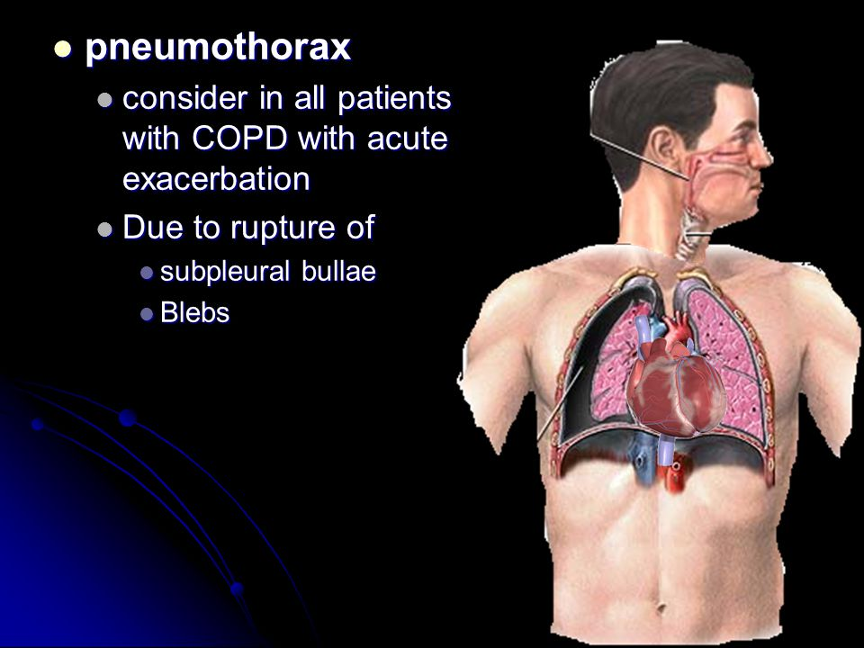pneumothorax consider in all patients with COPD with acute exacerbation. Due to rupture of. subpleural bullae.