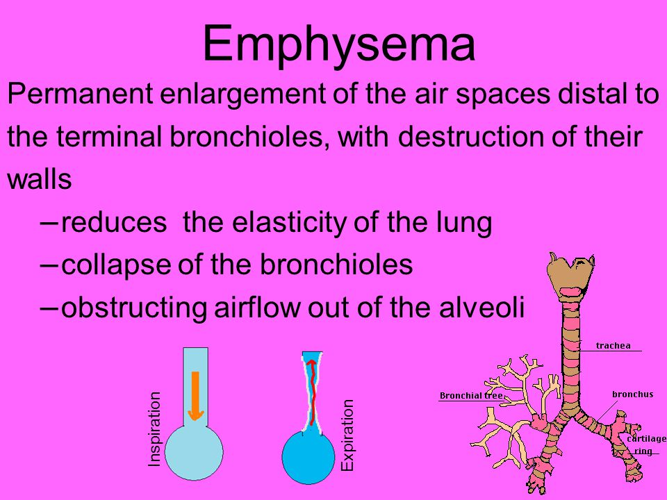 Emphysema Permanent enlargement of the air spaces distal to