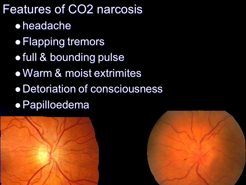 Features of CO2 narcosis