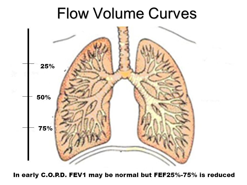 Flow Volume Curves 25% 50% 75% In early C.O.P.D. FEV1 may be normal but FEF25%-75% is reduced