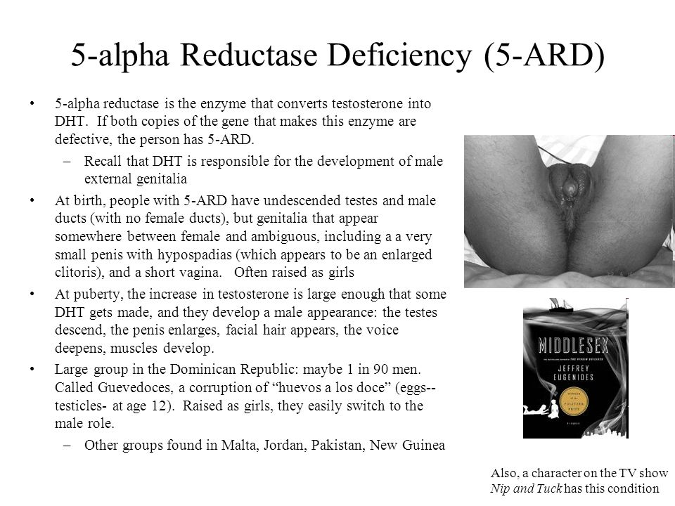 5 Alpha Reductase Deficiency 5 Ard