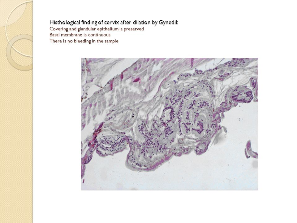 Histhological finding of cervix after dilation by Gynedil: Covering and glandular epithelium is preserved Basal membrane is continuous There is no bleeding in the sample
