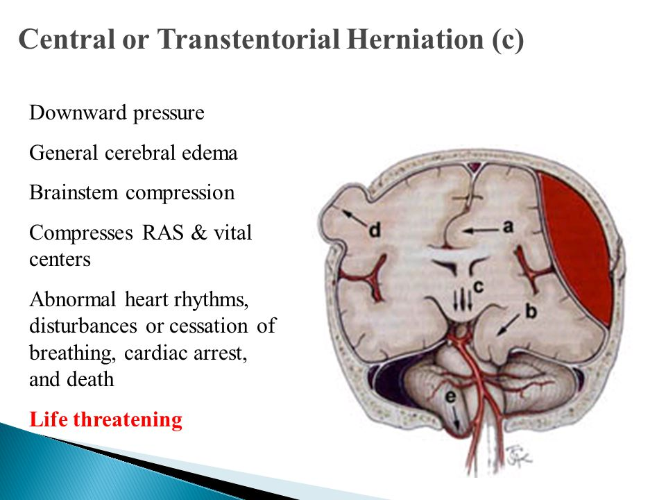 Central or Transtentorial Herniation (c)