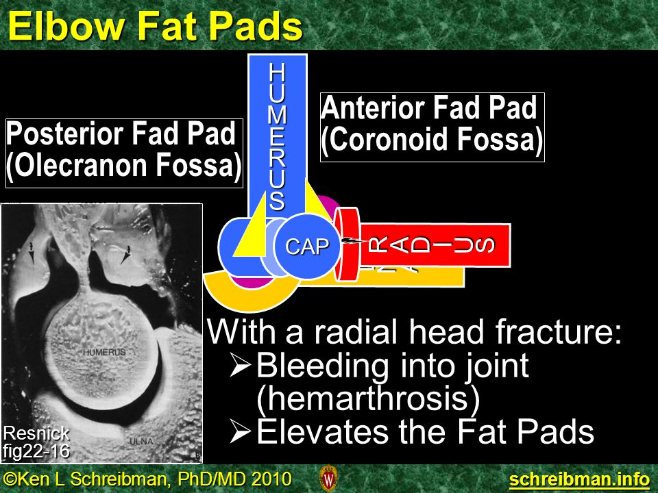 Elbow Fat Pads With a radial head fracture: