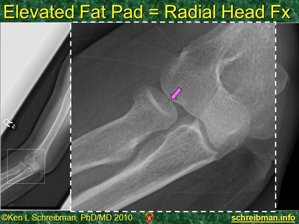 Elevated Fat Pad = Radial Head Fx