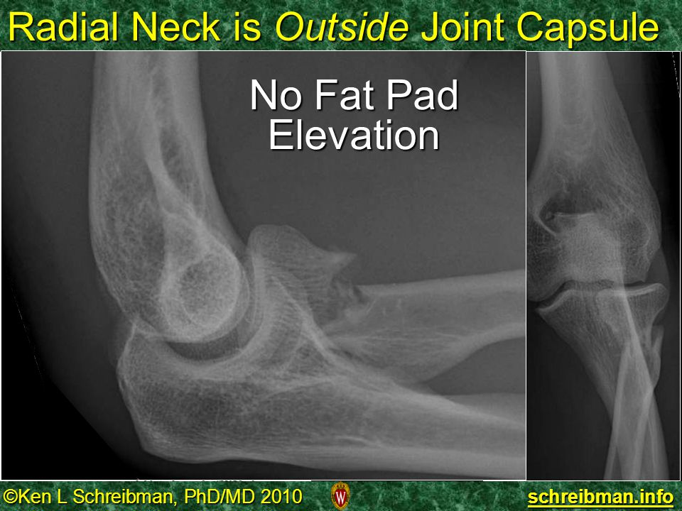 Radial Neck is Outside Joint Capsule