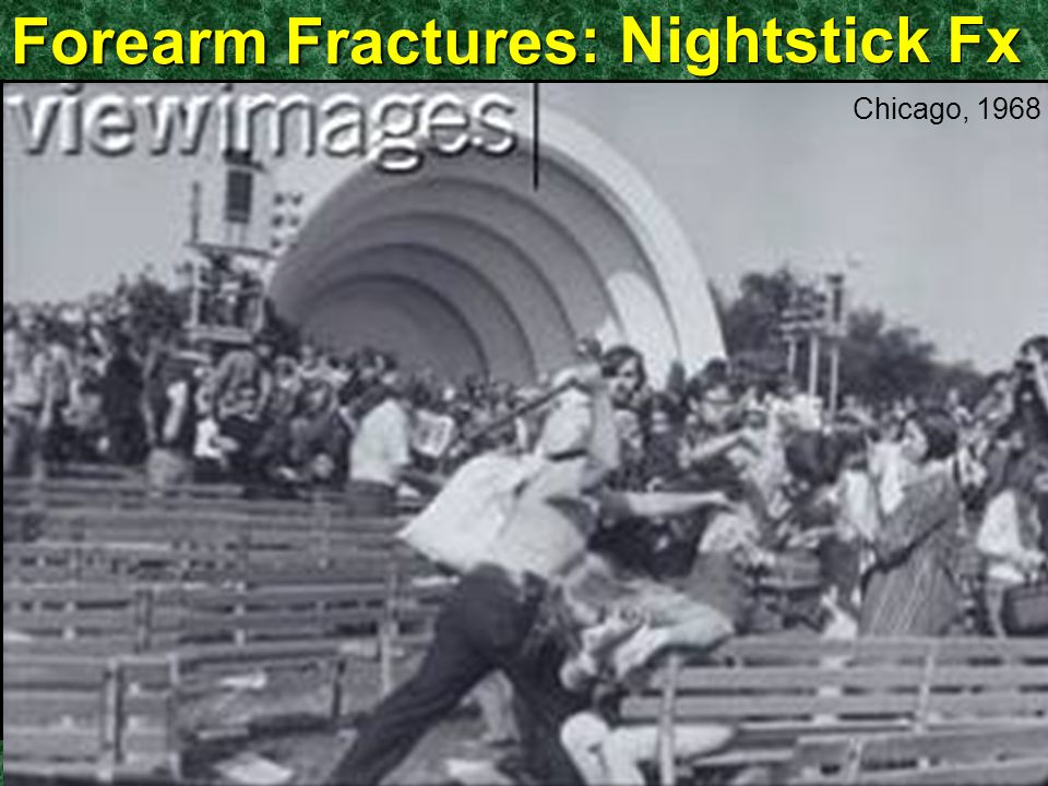 Forearm Fractures : Nightstick Fx Chicago, 1968