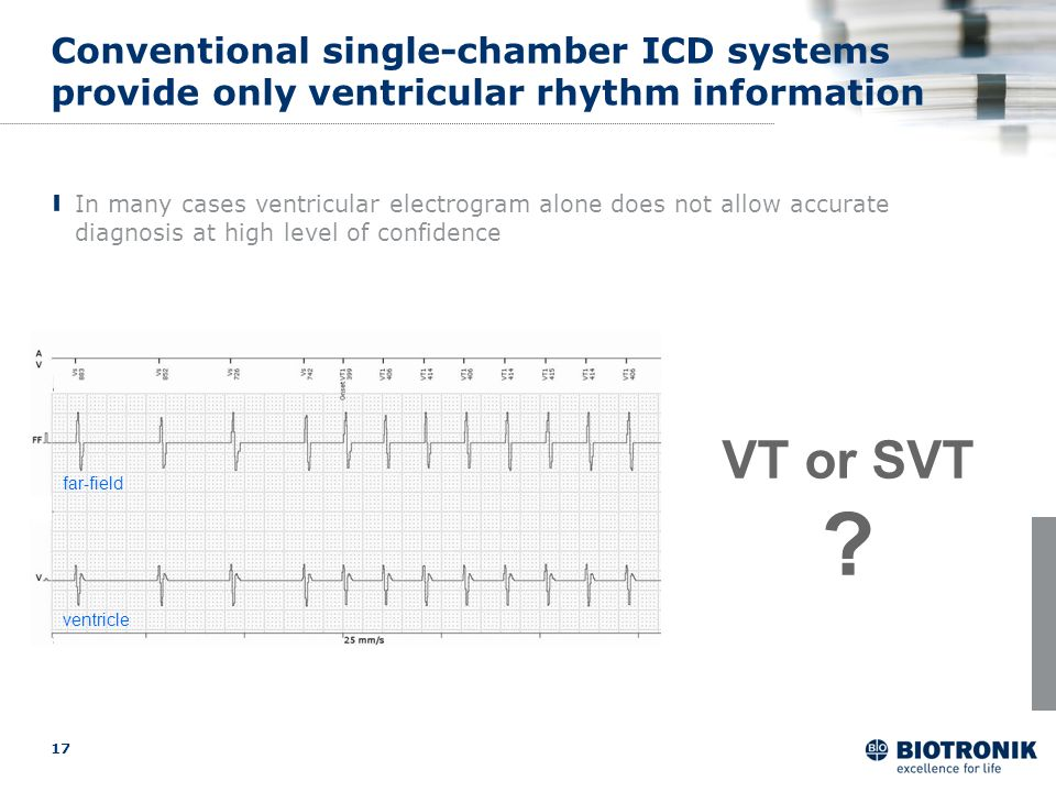Conventional single-chamber ICD systems provide only ventricular rhythm information