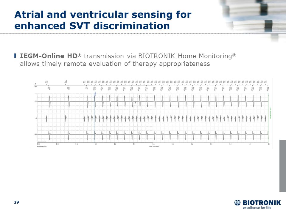 Atrial and ventricular sensing for enhanced SVT discrimination
