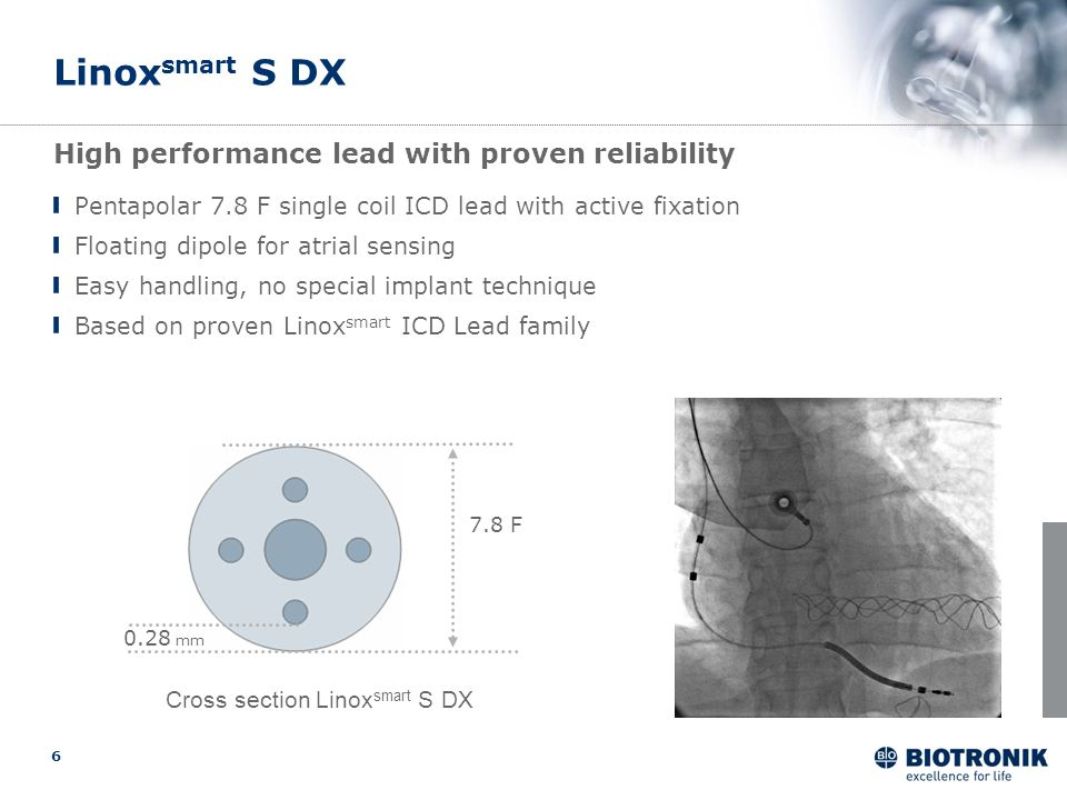 Linoxsmart S DX High performance lead with proven reliability