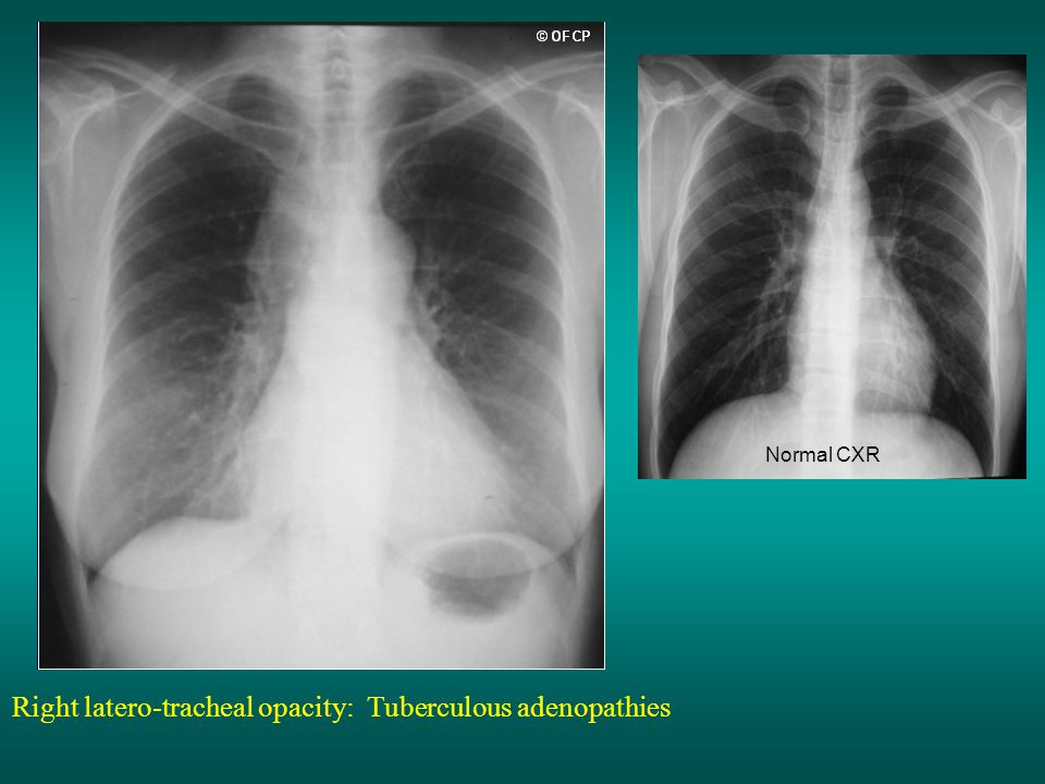 Right latero-tracheal opacity: Tuberculous adenopathies