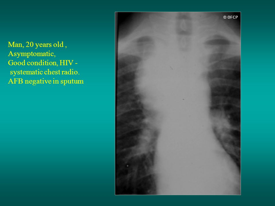 Man, 20 years old , Asymptomatic, Good condition, HIV - systematic chest radio.