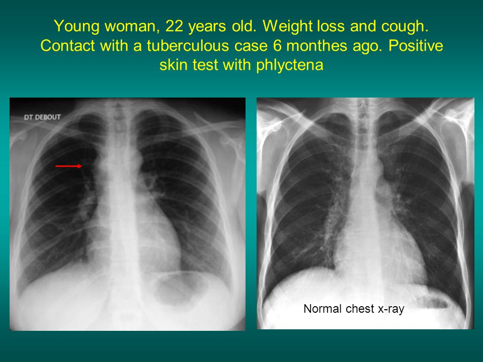 Young woman, 22 years old. Weight loss and cough
