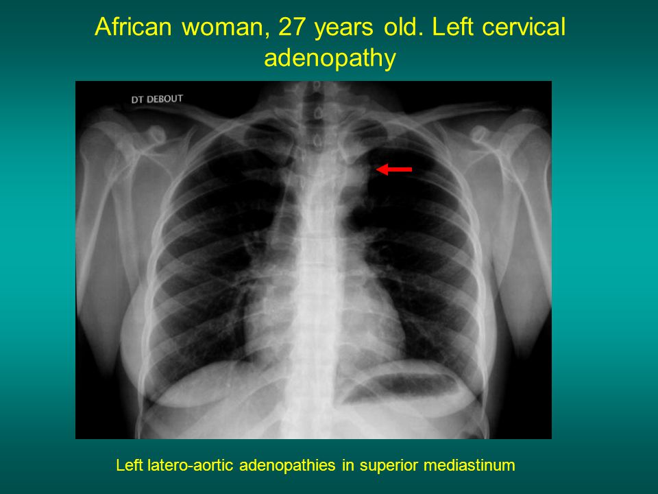 African woman, 27 years old. Left cervical adenopathy