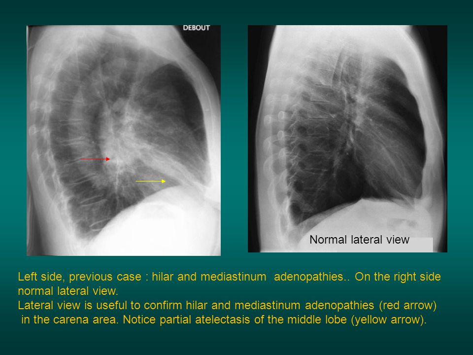 Normal lateral view Left side, previous case : hilar and mediastinum adenopathies.. On the right side normal lateral view.