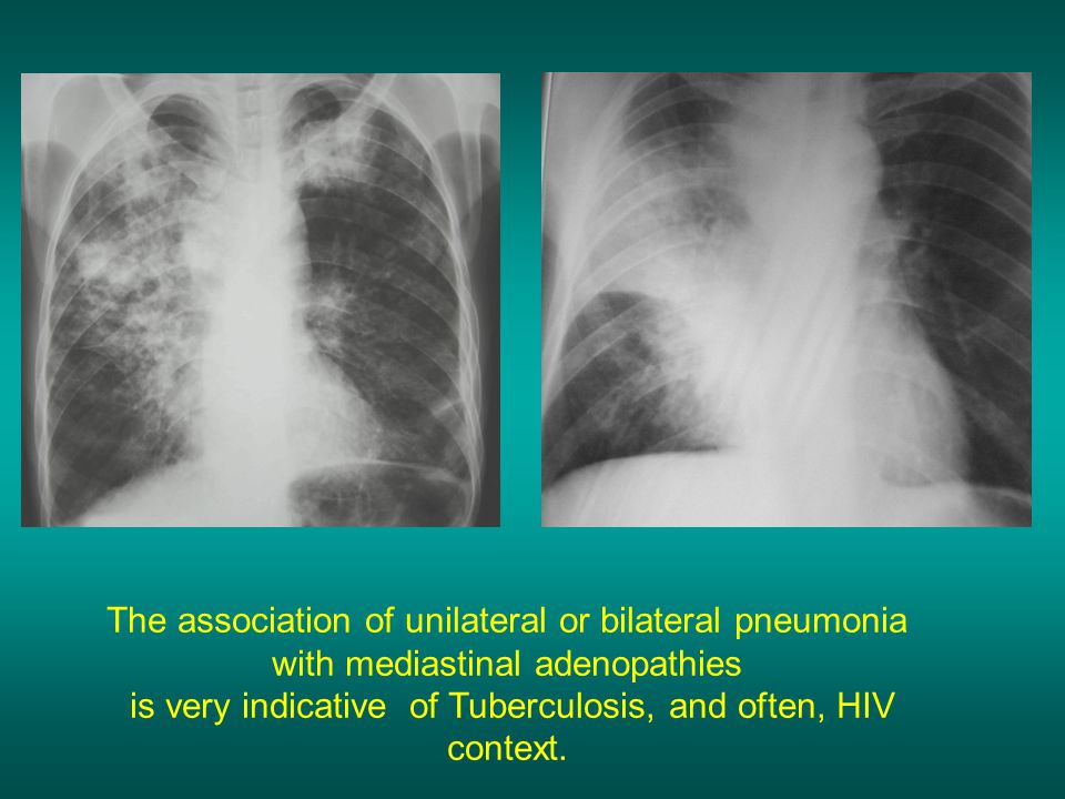 is very indicative of Tuberculosis, and often, HIV context.