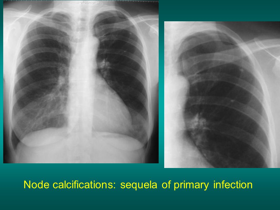 Node calcifications: sequela of primary infection
