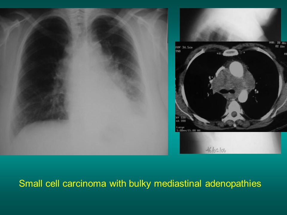 Small cell carcinoma with bulky mediastinal adenopathies