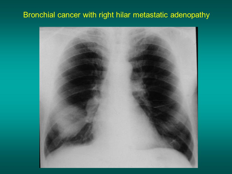 Bronchial cancer with right hilar metastatic adenopathy