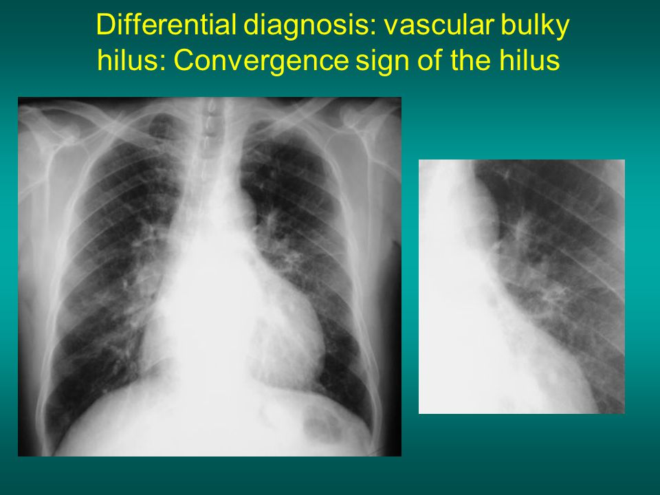 Differential diagnosis: vascular bulky hilus: Convergence sign of the hilus