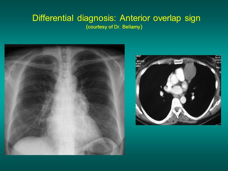 Differential diagnosis: Anterior overlap sign (courtesy of Dr. Bellamy)