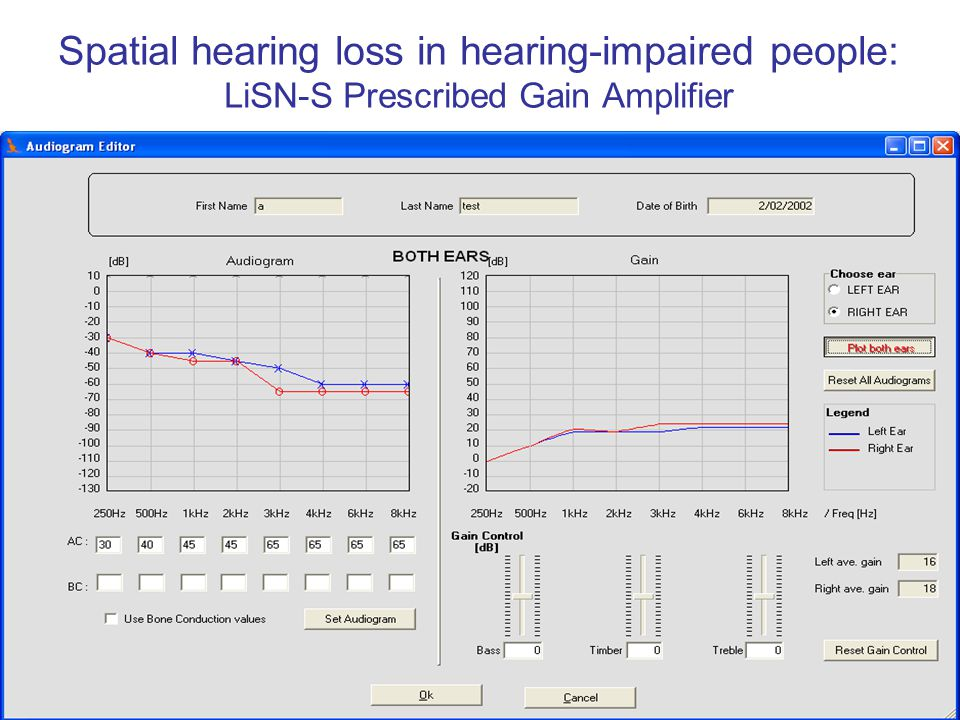Spatial hearing loss in hearing-impaired people: LiSN-S Prescribed Gain Amplifier