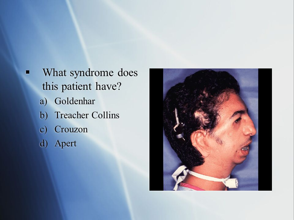 What syndrome does this patient have
