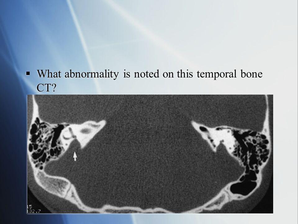 What abnormality is noted on this temporal bone CT