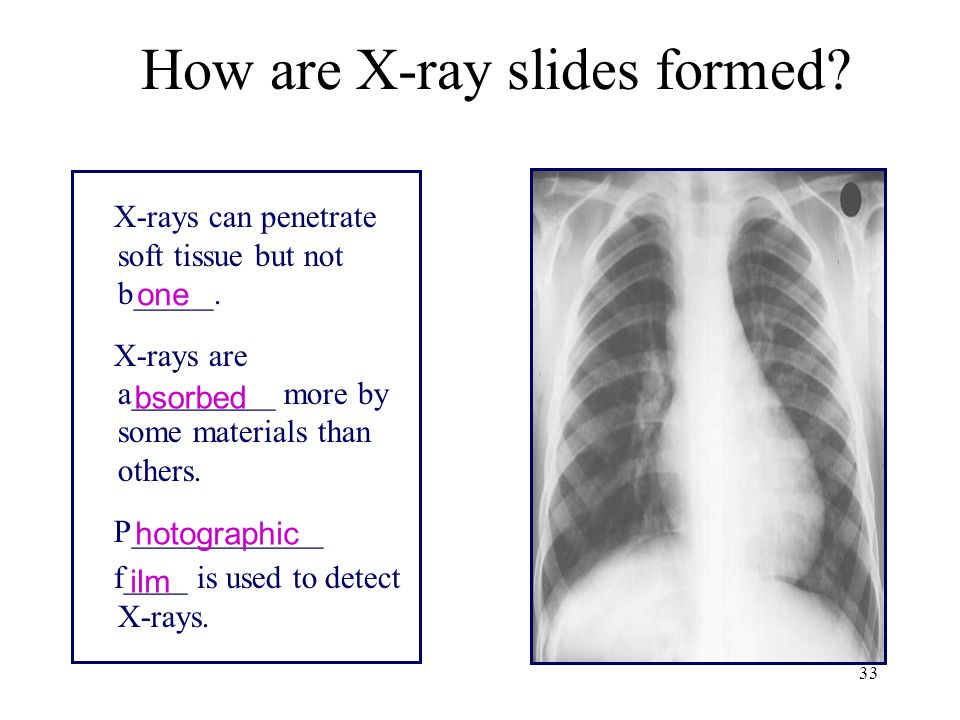 How are X-ray slides formed