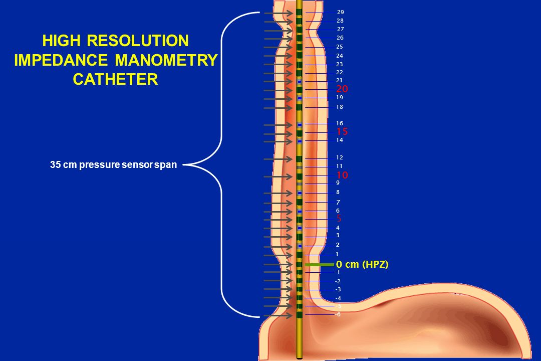 HIGH RESOLUTION IMPEDANCE MANOMETRY CATHETER