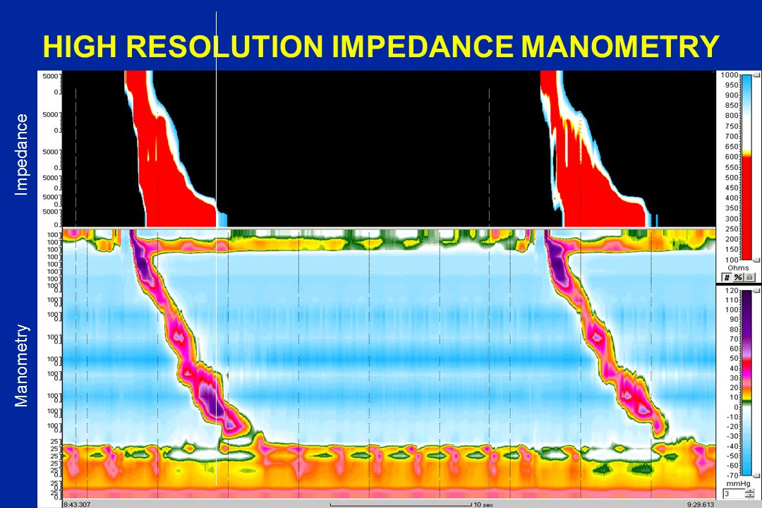 HIGH RESOLUTION IMPEDANCE MANOMETRY