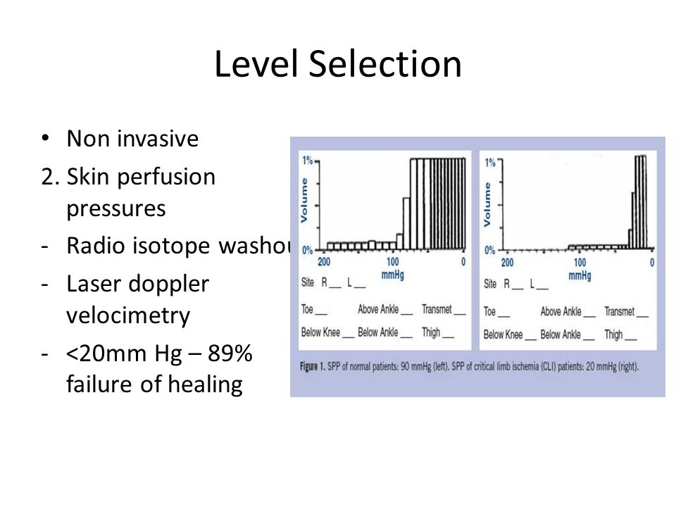 Level Selection Non invasive 2. Skin perfusion pressures