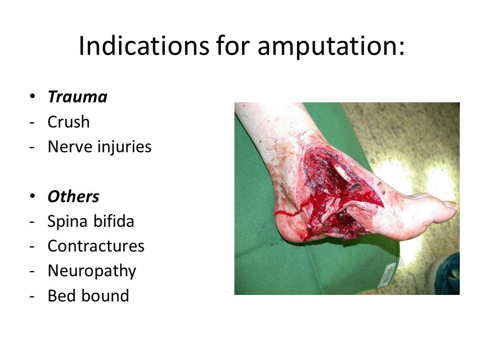 Indications for amputation: