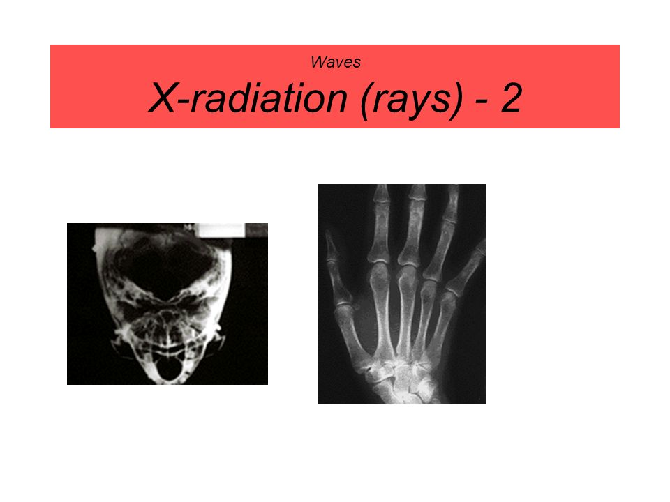 Waves X-radiation (rays) - 2